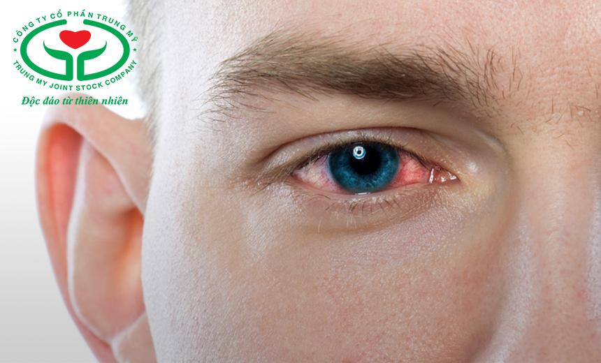 Chỉ dùng kháng sinh, chống viêm khi bị kết hợp khô mắt và nhiễm khuẩn mắt